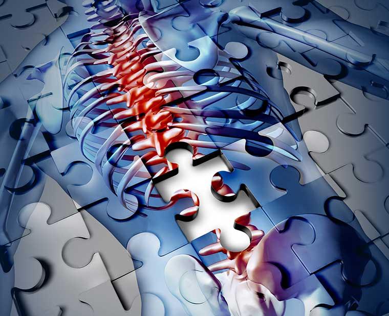 Hilfe bei chronischen Schmerzen bietet Dr. Veronika Morhart-Klute in Spiegelau